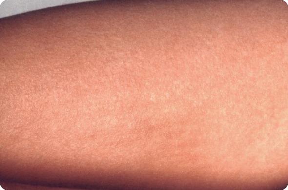 escarlate - prurido da febre