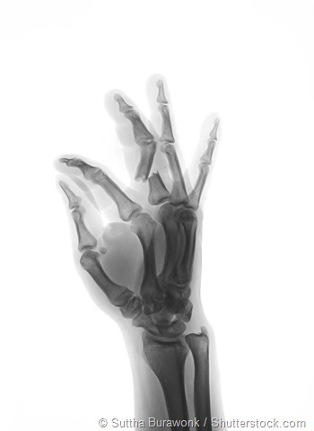 Hand fracture x-ray