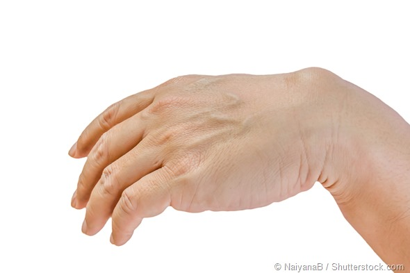 causes of hand pain