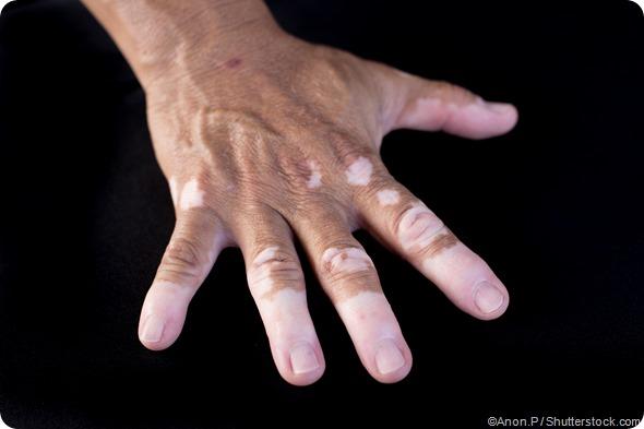 vitiligo on hand