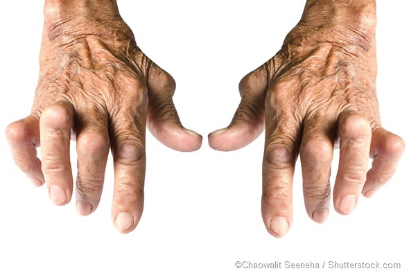 women's hands rheumatoid arthritis