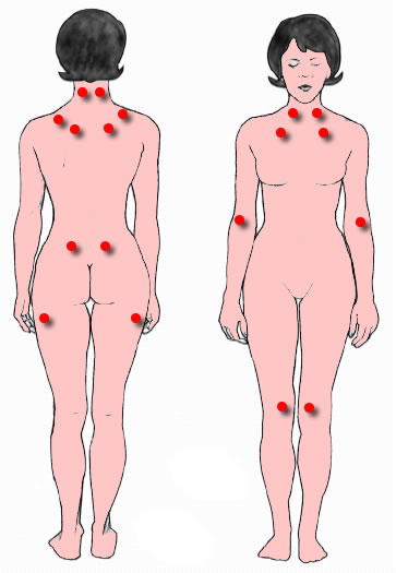 The location of the nine paired tender points that comprise the 1990 American College of Rheumatology criteria for fibromyalgia.